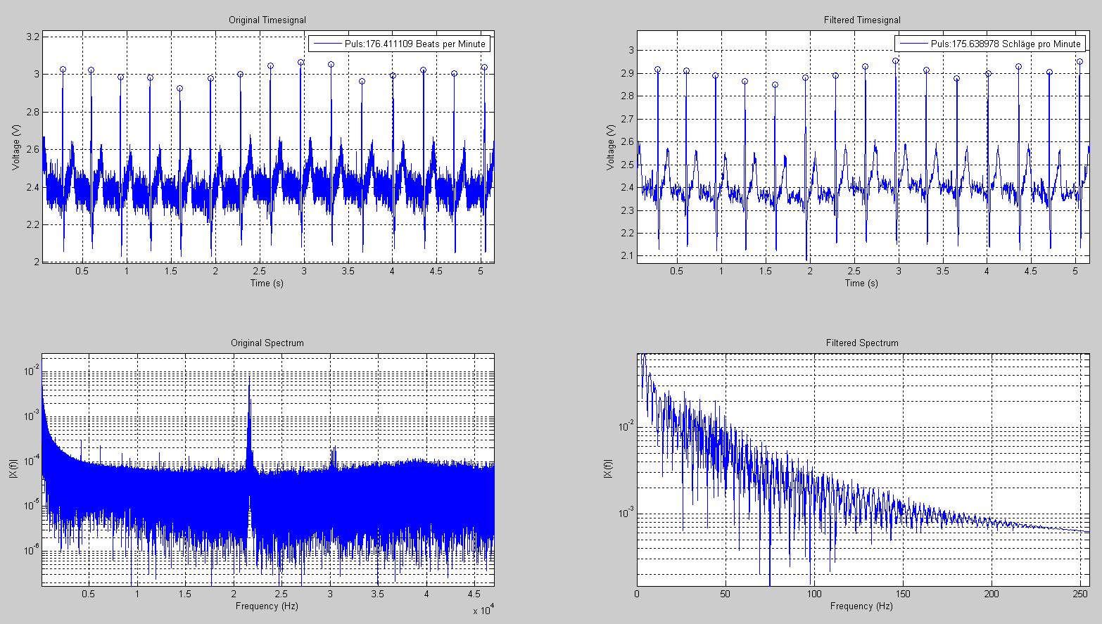 Instrumentation Amplifier Labtronics Circuit Diagram One